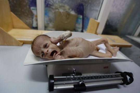 Yemen starting child1