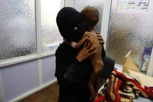Yemen starving child4
