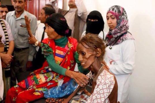 famine-yemen