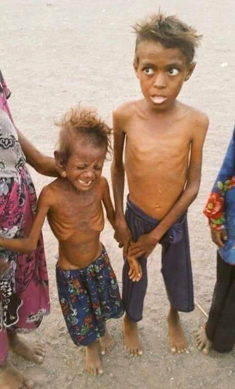 famine2-yemen